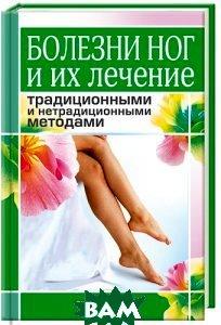 Болезни ног и их лечение традиционными и нетрадиционными методами  Нестерова А.В. купить