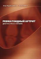 Ревматоидный артрит. Диагностика и лечение  В.Н. Коваленко, Н.М. Шуба, Л.Б. Шолохова, О.П. Борткевич купить