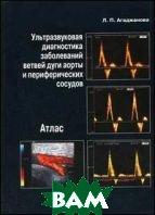 Ультразвуковая диагностика заболеваний ветвей дуги аорты и периферических сосудов. Атлас  Агаджанова Л.П.  купить