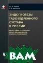 Эндопротезы таз обедренного сус тава в России Н адеев Ал. А. В  книге предложен а философия пос троения имплант атов, применяем ых при эндопрот езировании тазо