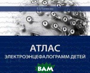 Атлас электроэнцефалограмм детей, МЕДпресс-информ, Полякова В.Б., 978-5-00030-291-0  - купить со скидкой