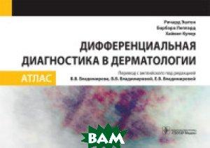 Купить Дифференциальная диагностика в дерматологии. Атлас, ГЭОТАР-Медиа, Эштон Р., 978-5-9704-3972-2