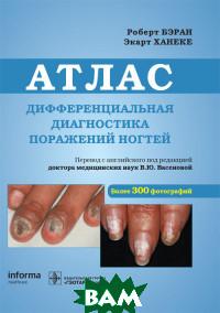 Купить Дифференциальная диагностика поражений ногтей. Атлас, ГЭОТАР-Медиа, Бэран Р., 978-5-9704-5131-1