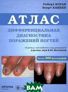 Купить Дифференциальная диагностика поражения ногтей. Атлас, ГЭОТАР-Медиа, Роберт Бэран, Экарт Ханеке, 978-5-9704-1960-1