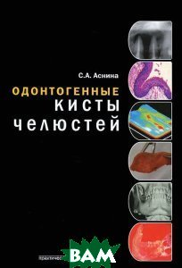 Купить Одонтогенные кисты челюстей, Практическая Медицина, С. А. Аснина, 978-5-98811-207-5